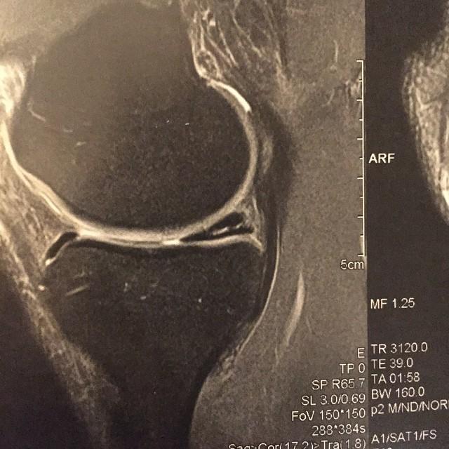 """""""fissure complexe de la corne postérieure du ménisque interne"""" Ma déprime annoncée :-("""