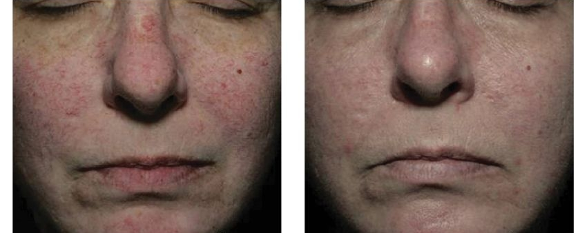 Facial Vein Removal