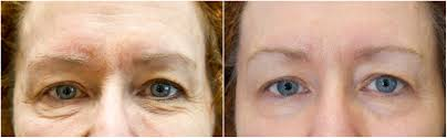 Under Eye, 4 Treatments