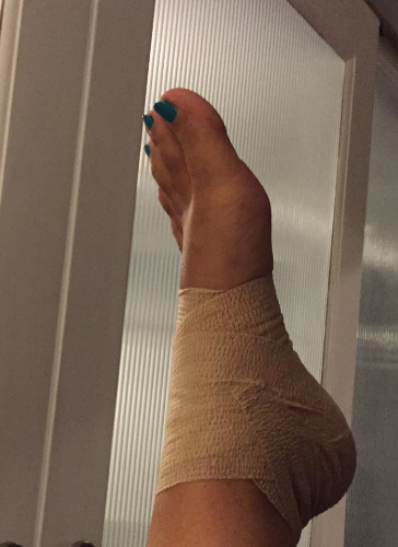 Foot Fail