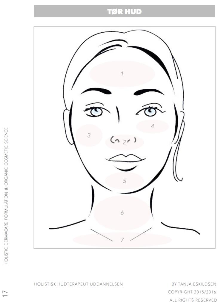 tør hud eksem