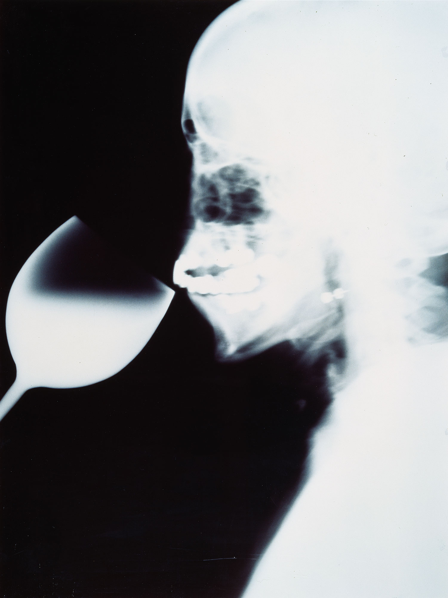 X-Ray-1991-C