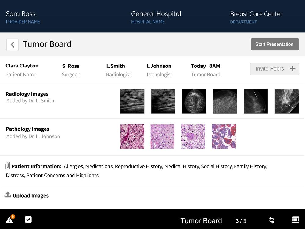 BCP_030614_TumorBoard_fj-05.png