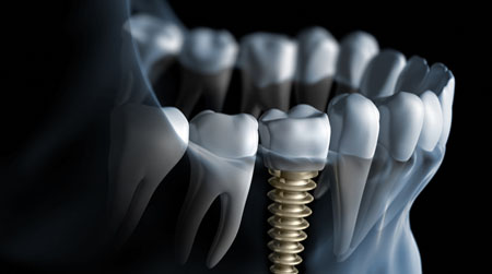 we do implants    Times have changed and technology offers new options for replacing lost teeth.  At Eglinton Way Dentistry we use dental implants in many different tooth loss scenarios.     Learn All About Implants →