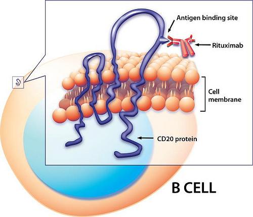 Wegener's Granulomatosis and Rituximab