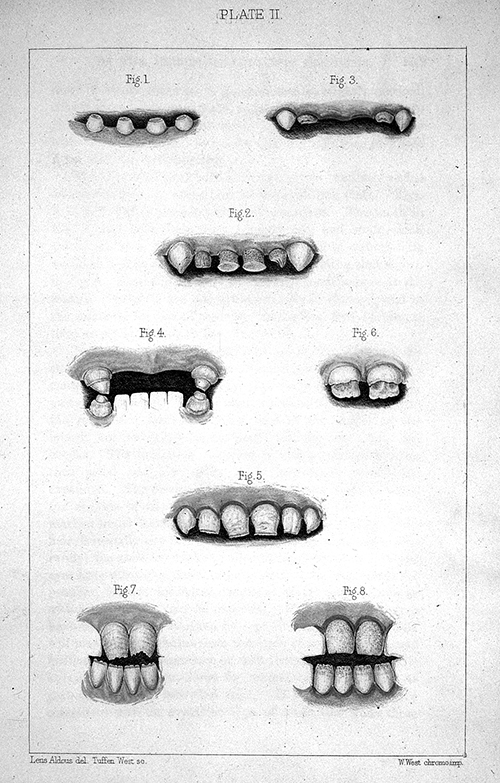 "Candy corn: similar in appearance to small rotten pointy teeth but even less delicious. (""Syphilitic malformations of the permanent teeth"", from  A clinical memoir on certain diseases of the eye and ear, consequent on inherited syphilis : with an appended chapter of commentaries on the transmission of syphilis from parent to offspring, and its more remote consequences  by Jonathan Hutchinson.  [Plate facing page 205].  Published by John Churchill, London, 1863. Wellcome Library, image no. L0021139)."