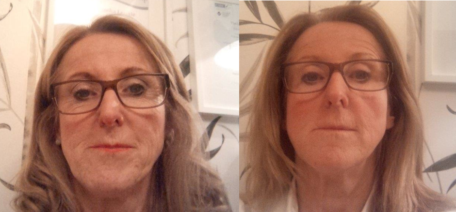 Natural Facelift Therapy - Before and After