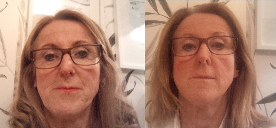 Natural Facelift - Before and After 6 Treatments