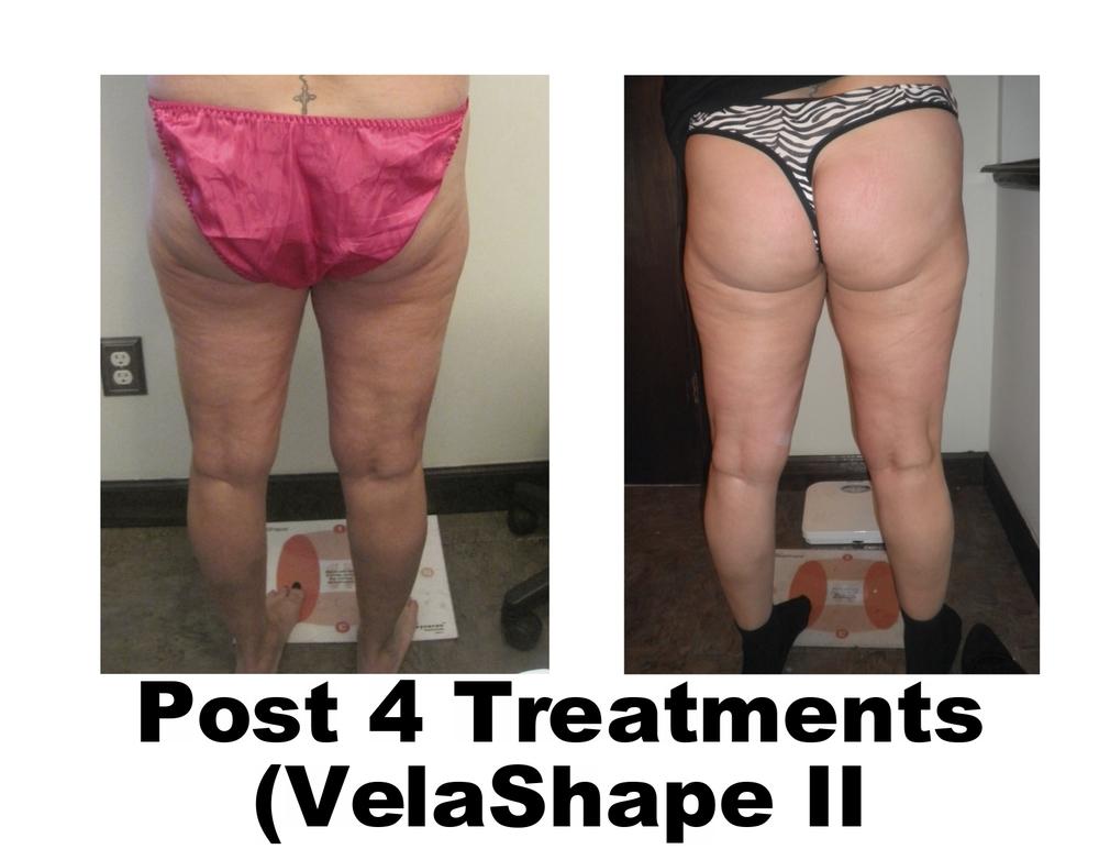 Renee Back of thighs.jpg
