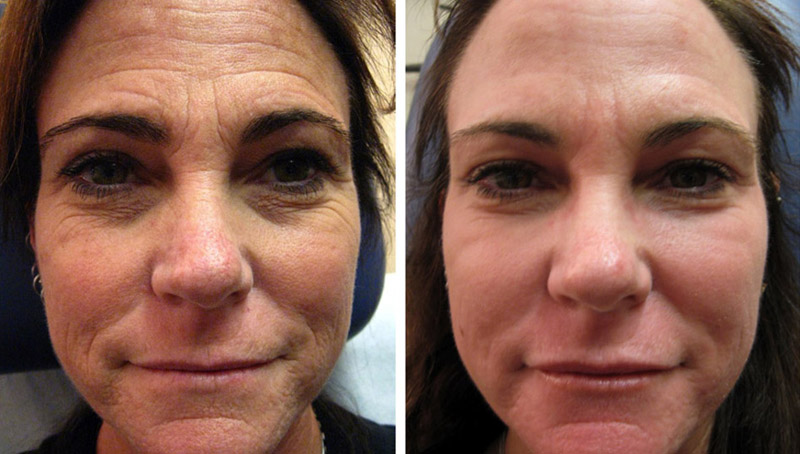 Results Shown are Post 3 Advanced Microneedling  +RF Treatments