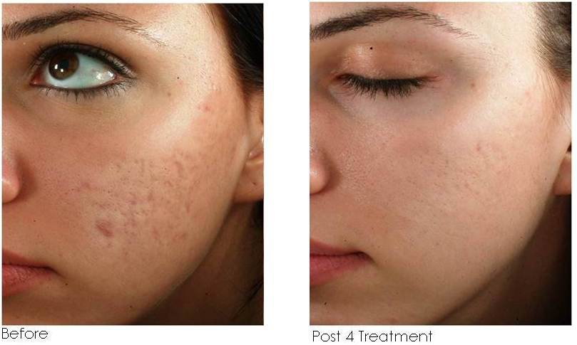 Results Shown Post 4 Standard Microneedling Treatments