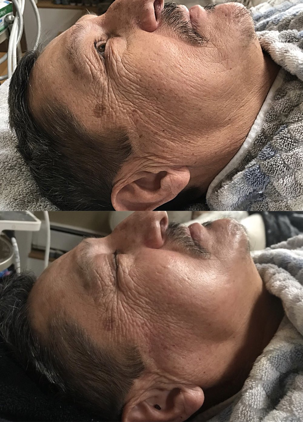 Results Shown Immediately Post Skin Genesis Treatment