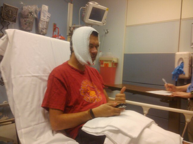 Here's a picture of me after my crash. The doctor came and told me I was lucky and that he'd seen much worse. When he realized I had been riding a bicycle, not a motorcycle he chuckled and left.