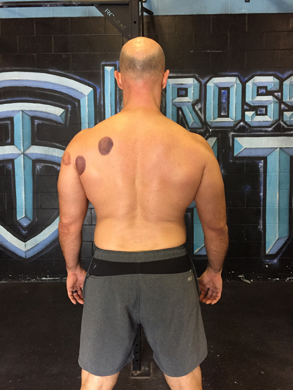 Acceptable Back Image