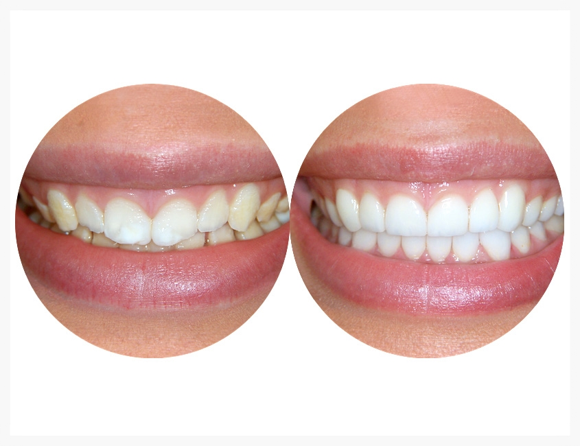 custom-porcelain-restorations-006.jpg