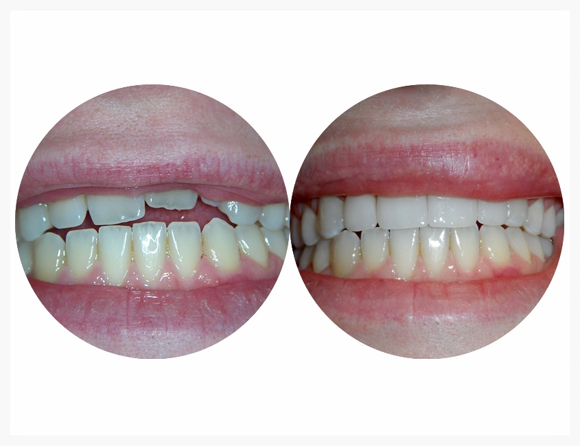 custom-porcelain-restorations-008.jpg