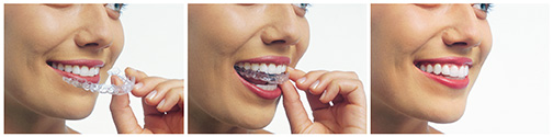 Invisalign clear aligners are a discreet way to straigten your teeth.