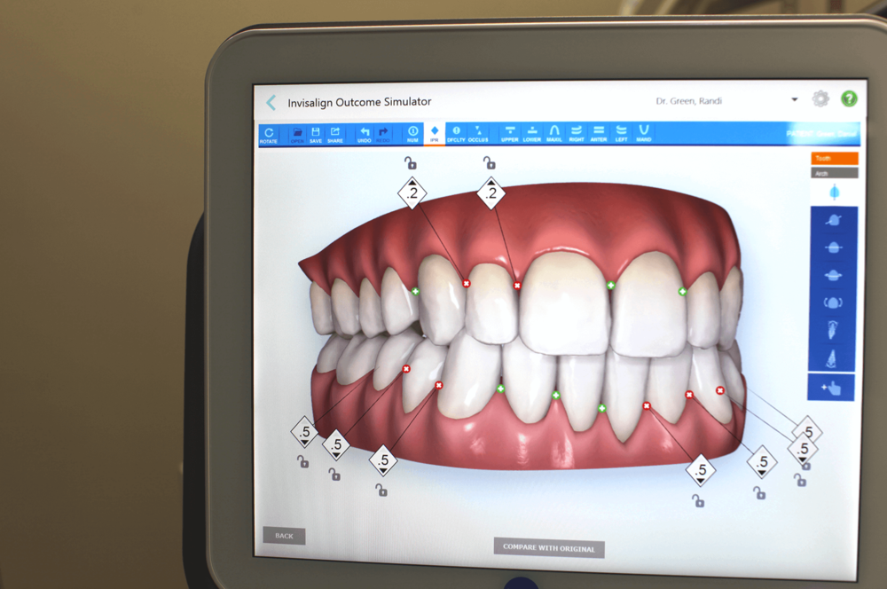The Invisalign outcome simulator with time-lapse technology can simulate your treatment with the Springfield Smile Doctor. - Simulate your finished smile digitally and see your