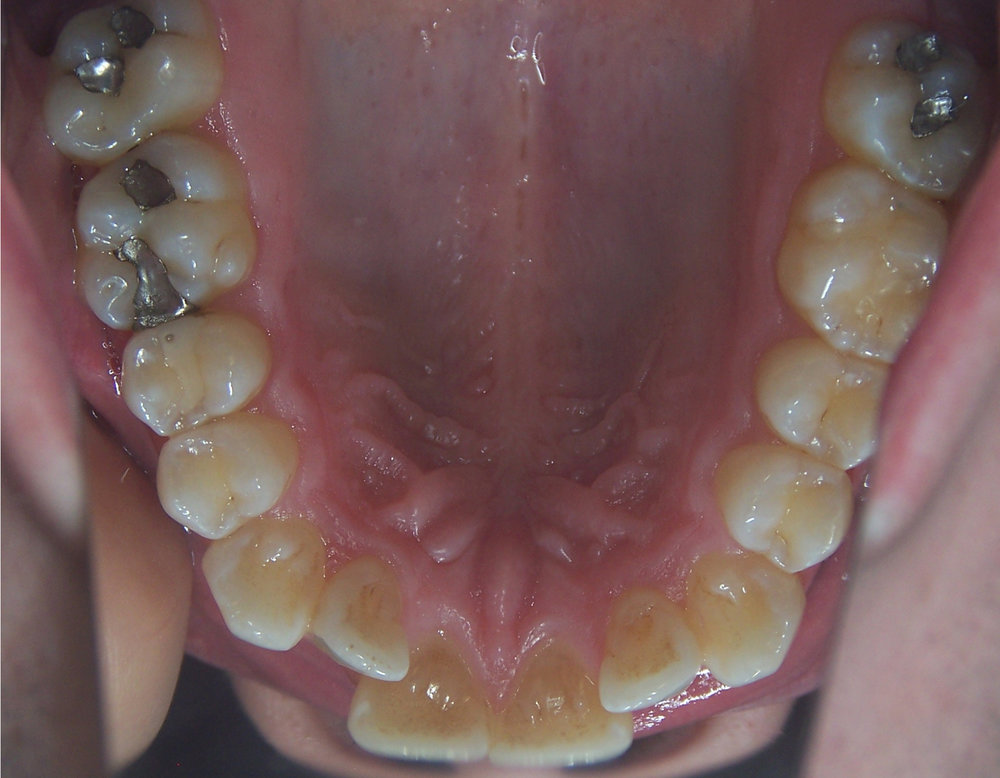 Dan's upper arch before Invisalign