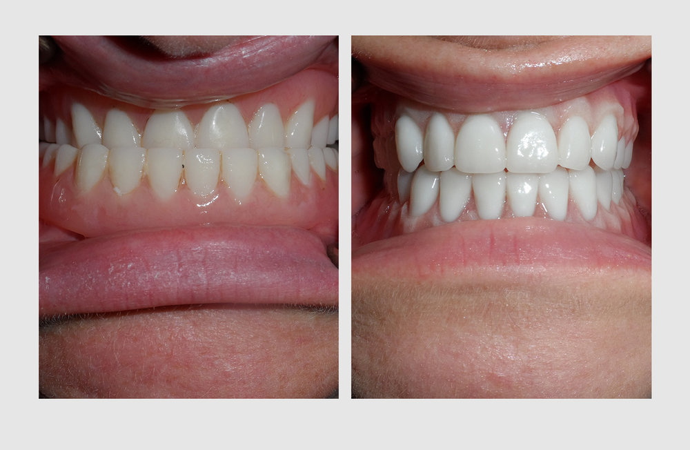 Notice the difference of the conventional denture on the left and the life-like quality of Dr. Green's cosmetic denture on the right.