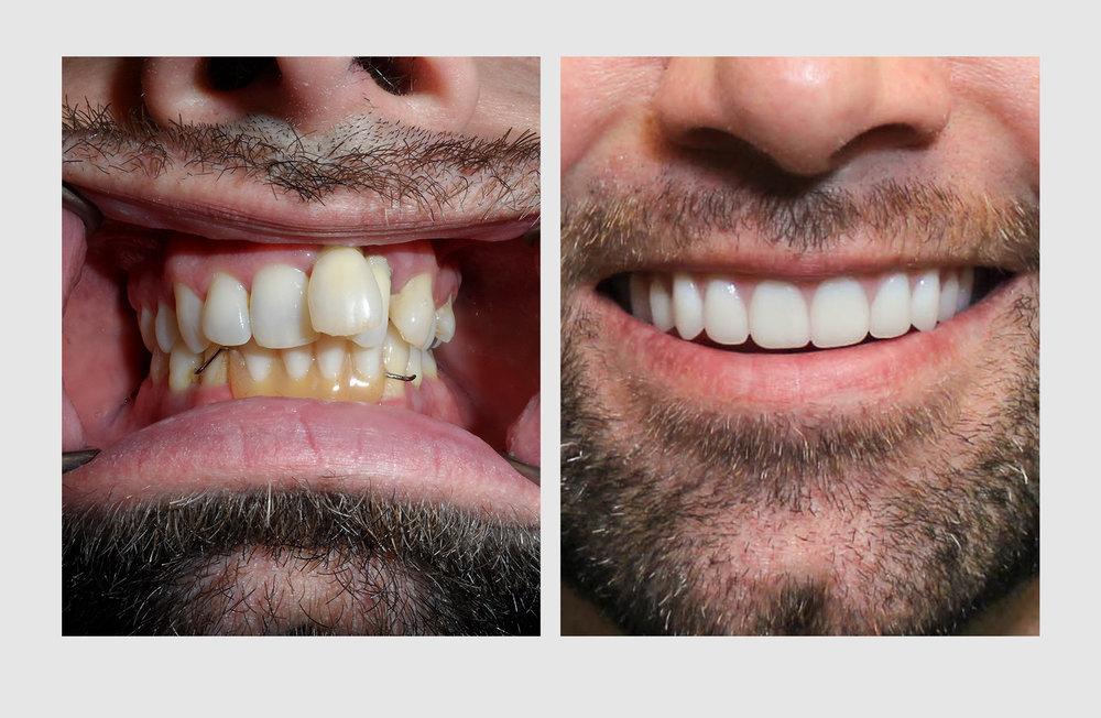 A cosmetic denture is an investment in your health and well-being and a great alternative to ailing and failing teeth or poor-quality dental work.