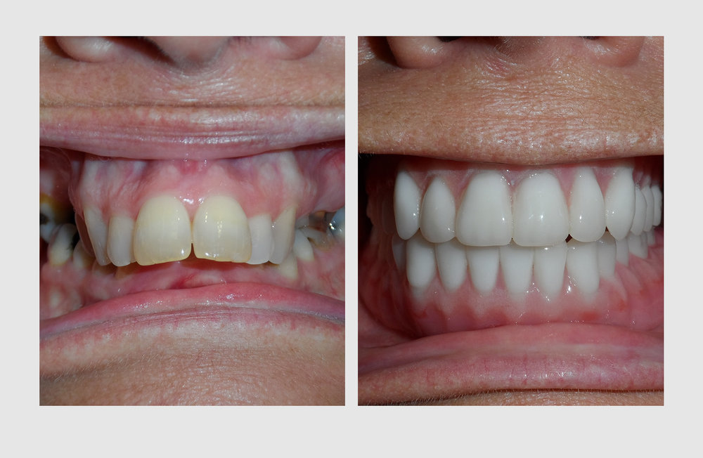 Dr. Green's cosmetic denture can help you appear years, even decades younger, and give you mini face lift.