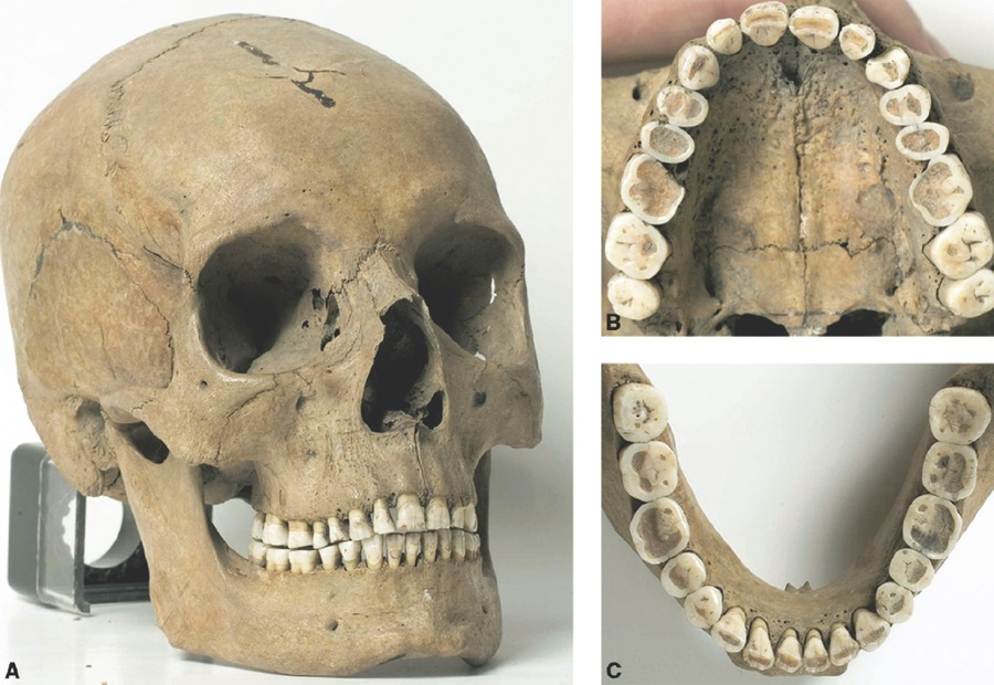 Pre-industrial jaw and teeth   with plenty of room for wisdom teeth and support to avoid an underdeveloped jaw.
