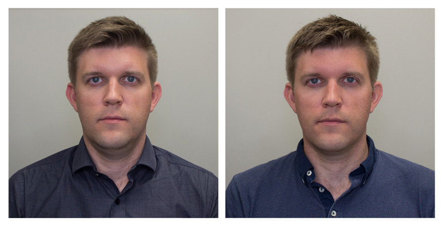 Forward No Smile   —   Left on Day 2 / Right on Day 30