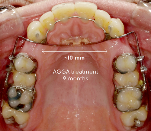 AGGA UPDATE JANUARY 2019: Many have asked to see what over 10 mm of development with AGGA looks like.