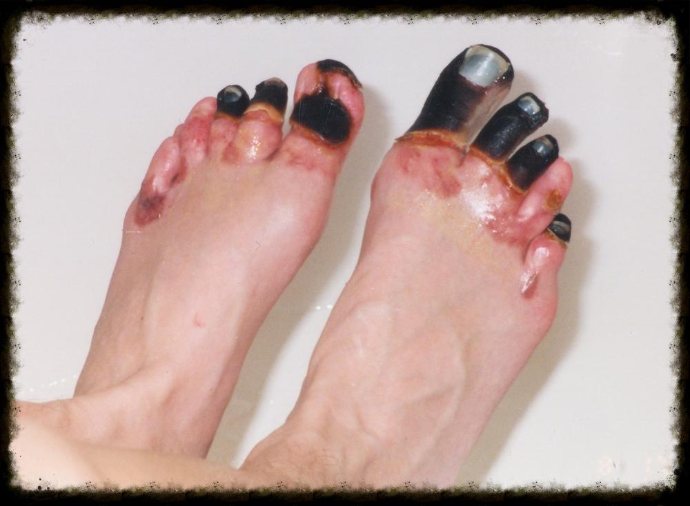6.9 - pre surgery feet.jpg