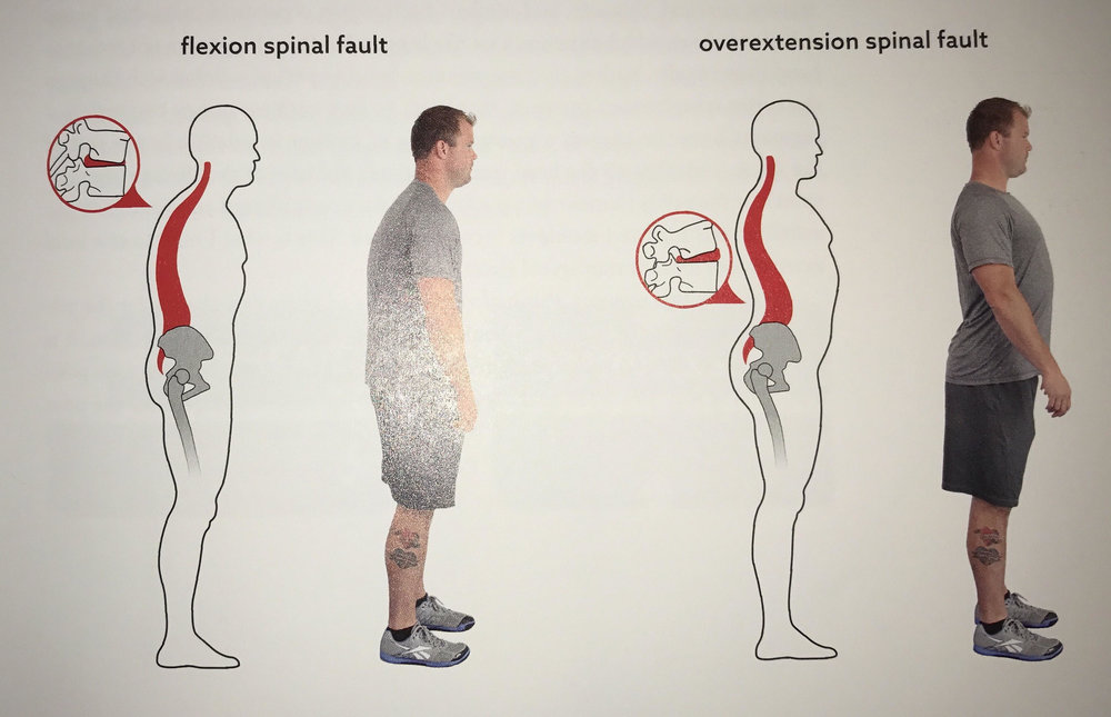 Image 2: Flexion and Overextension Spinal Faults