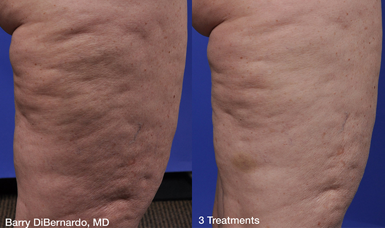 Great results from ThermiSmooth Body on thighs.