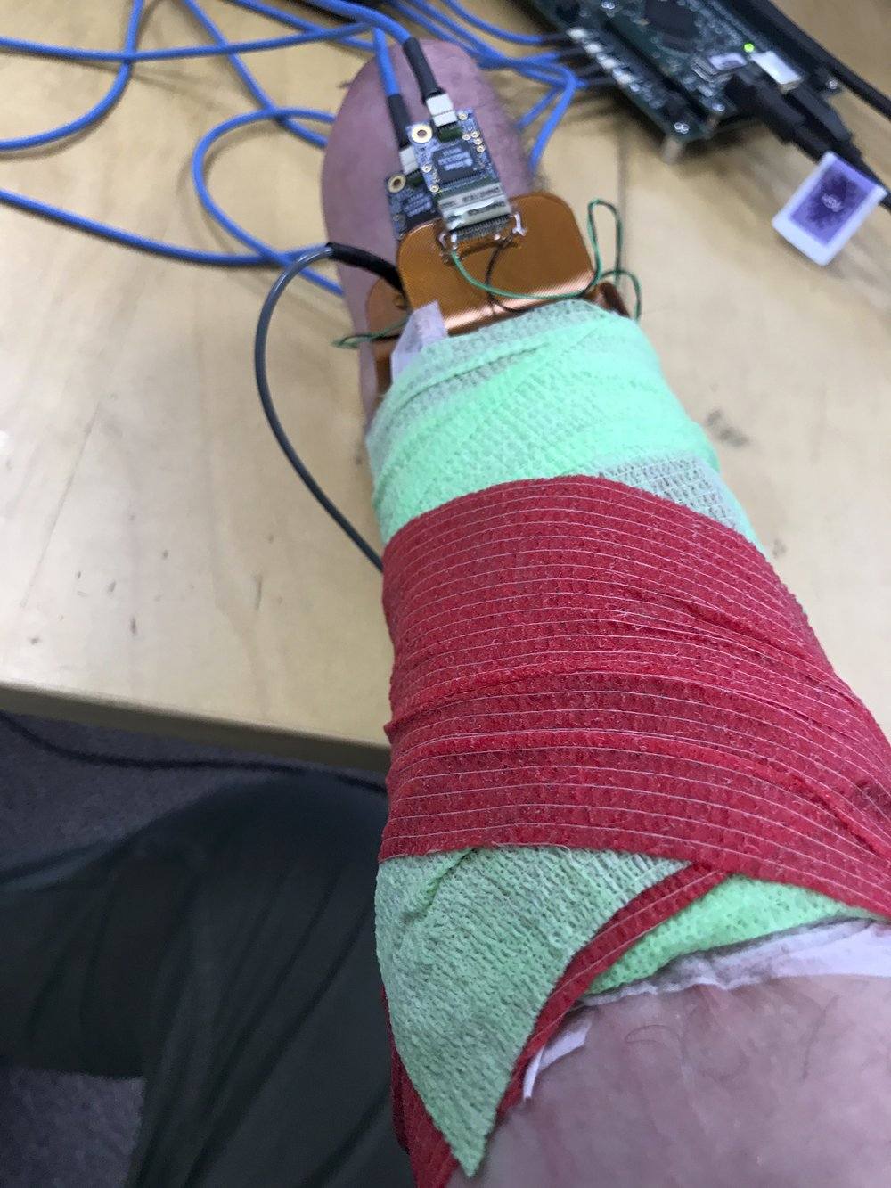 "Andrew Rubin: ""The second photograph is of the High-Def myosite testing that IBT conducted to determine where the best electrode placement is on my forearm."""