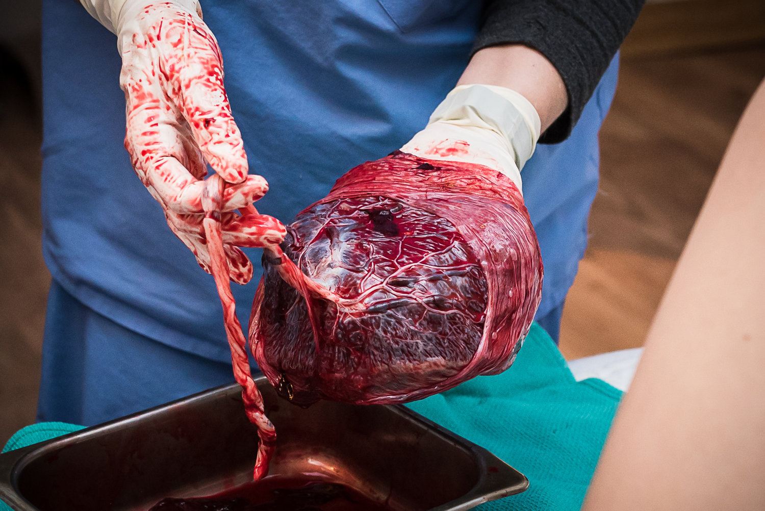 Placenta after birth