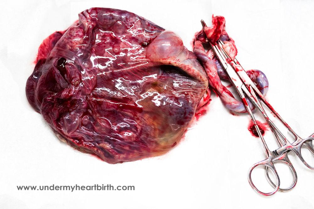 Placenta at Hospital