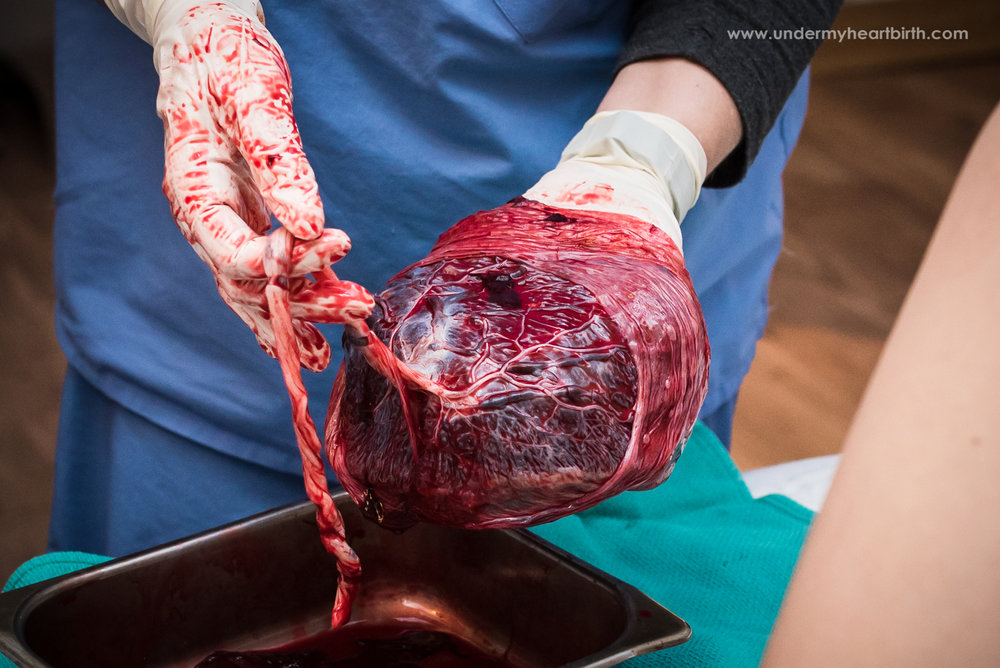 Placenta being shown