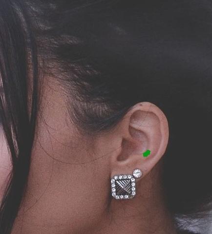 Auricular (ear) Acupressure