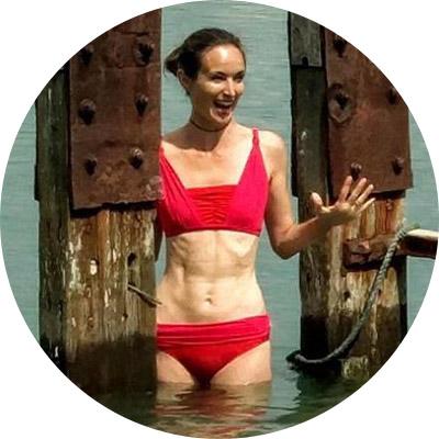 Karen D Mastectomy bikini testimonial