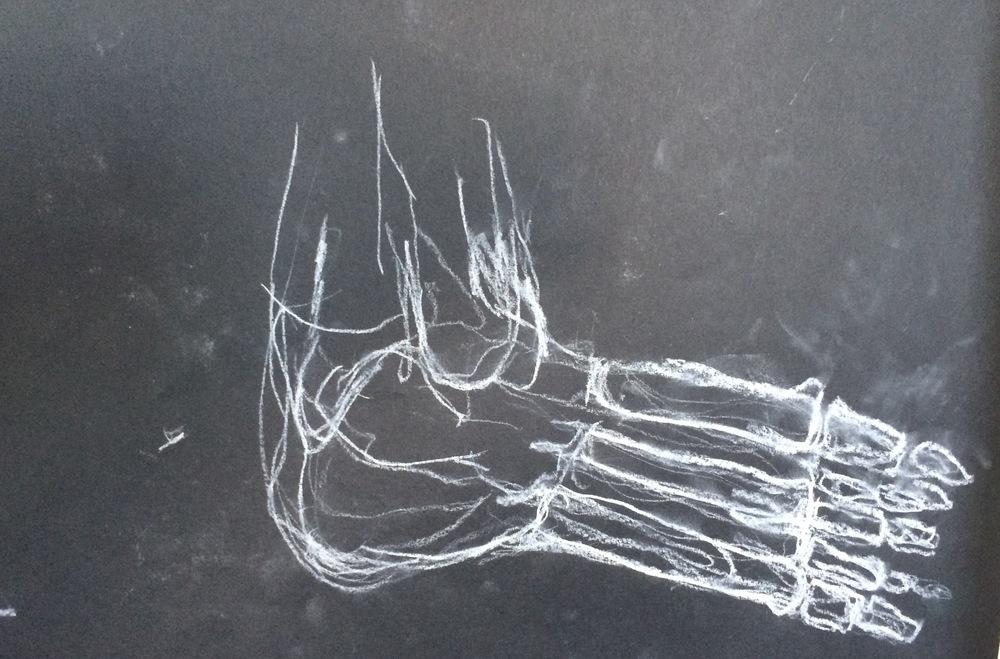 xray foot.jpeg
