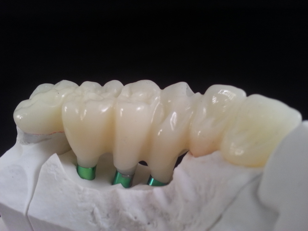 With PMMA Provisionals, you can provide your patients with a beautiful smile as soon as you prepare their teeth. These splinted crowns and full-arch bridges restore lost vertical dimension and promote contoured healing for ovate pontics or anterior extractions