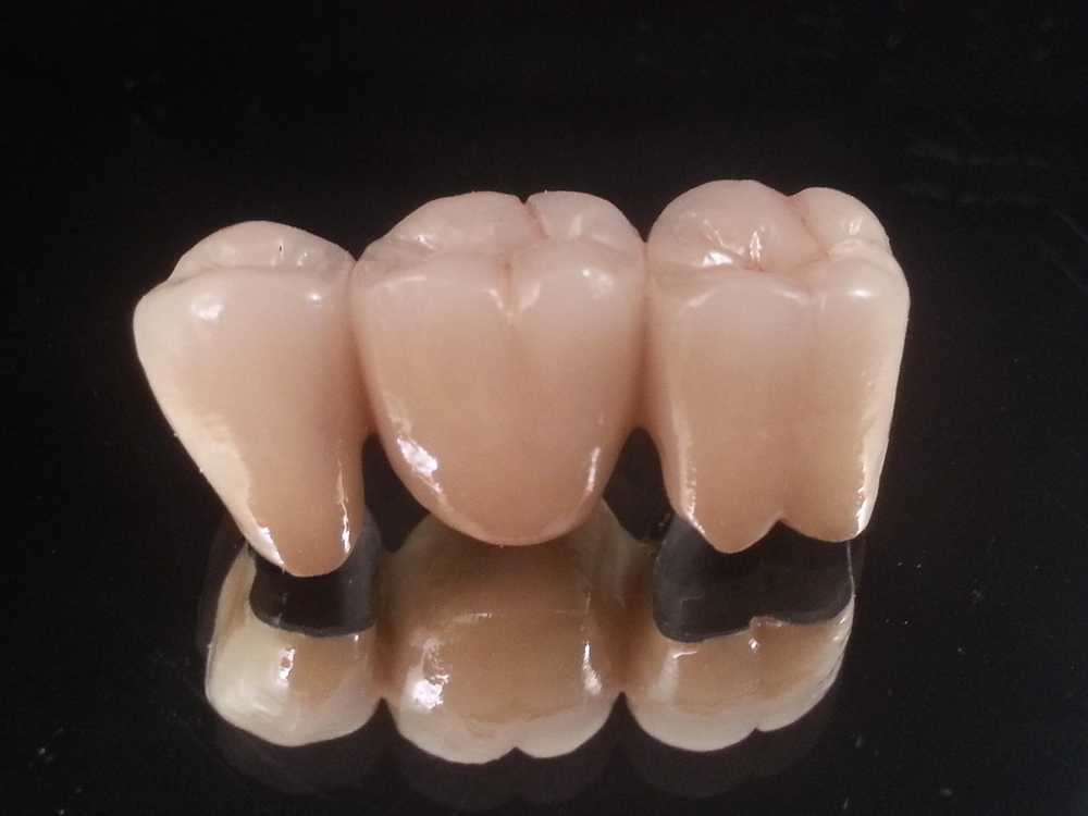 Porcelain fused to metal restorations are indicated for crowns and full-arch bridges with any metal or porcelain margin design. PFMs are also ideal for crowns & bridges used in conjunction with screw-retained implants, attachments and partial dentures.