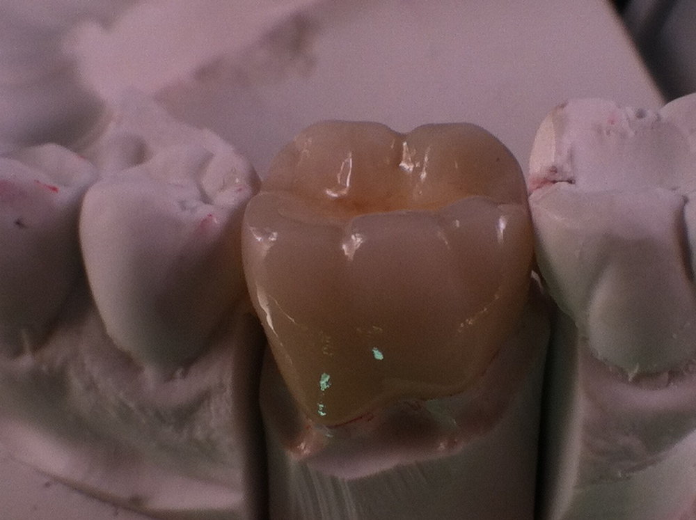 IPS e.max® is made of monolithic lithium disilicate ceramic and delivers outstanding esthetics and precision fit. An affordable alternative to PFMs and zirconia-based restorations, IPS e.max is rated at over 400 Mpa and gives outstanding resistance to chipping found in other porcelain restorations