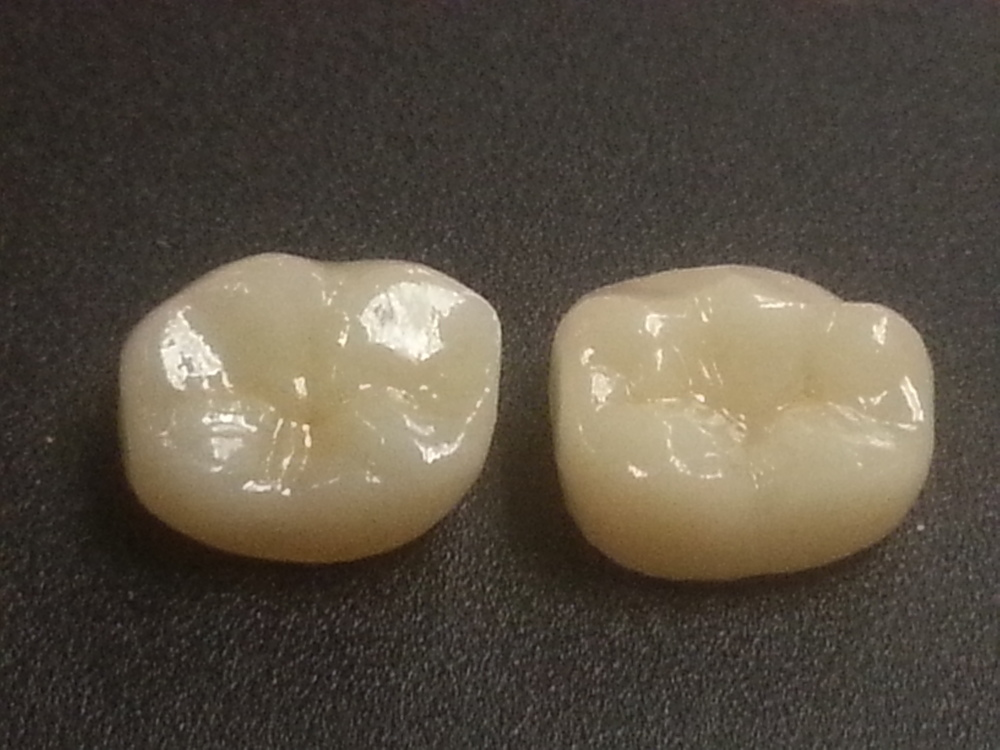 Cube X2 Zirconia next to an IPS Emax