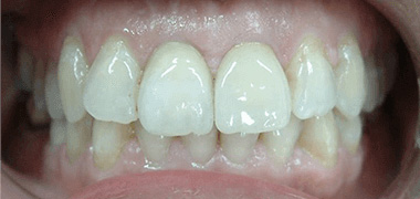 Fitted porcelain crown onto dental implant