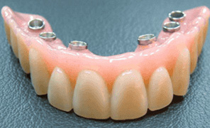 Temporary denture ready to be fitted 48 hours later