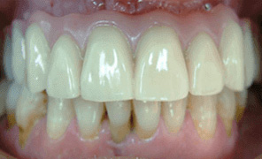 Fitted implant bridge 48 hours after initial placement