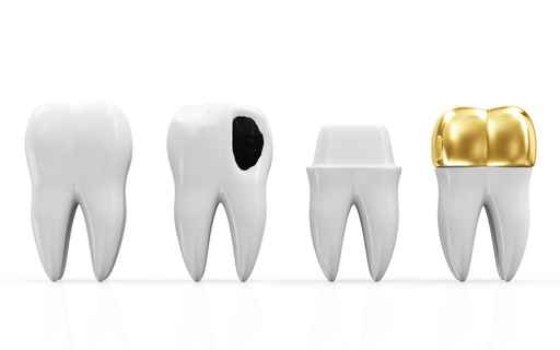 dental crowns Perth