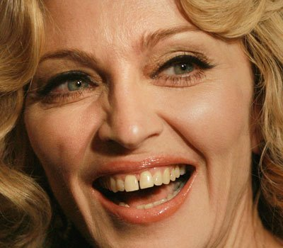 Madonna has probably the most famous diastema. Other celebrities include Arnold Schwarzenegger, Willam Dafoe and Elijah Wood.