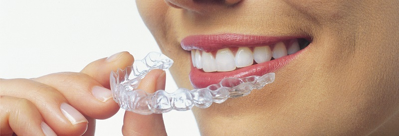 Invisalign What To Expect — Blog | Cambridge City Dental