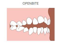 openbite.JPG
